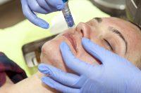 mezoterapie aplicare tratament